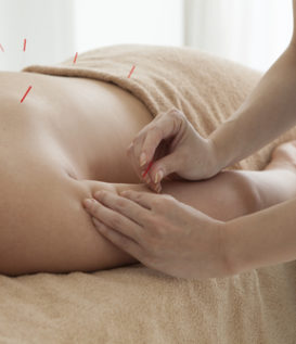 acupuncture treatment therapy
