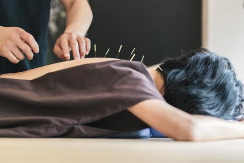 Acupuncture-Treatment-in-Manhattan-Beach